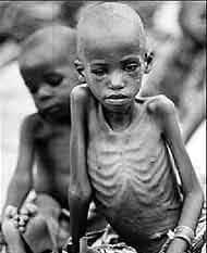 Desnutrição Infantil na África