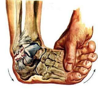 Lesões Articulares