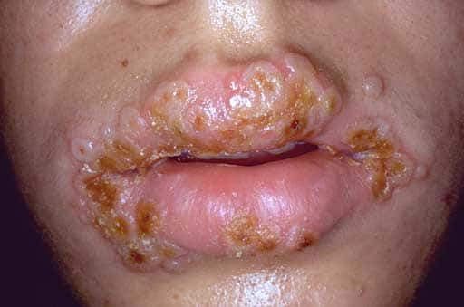 best ways to get rid of a cold sore in throat