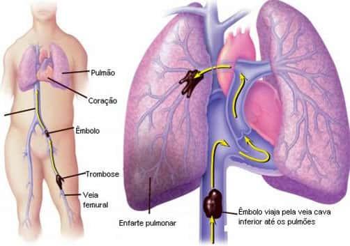 O que e embolia pulmonar?