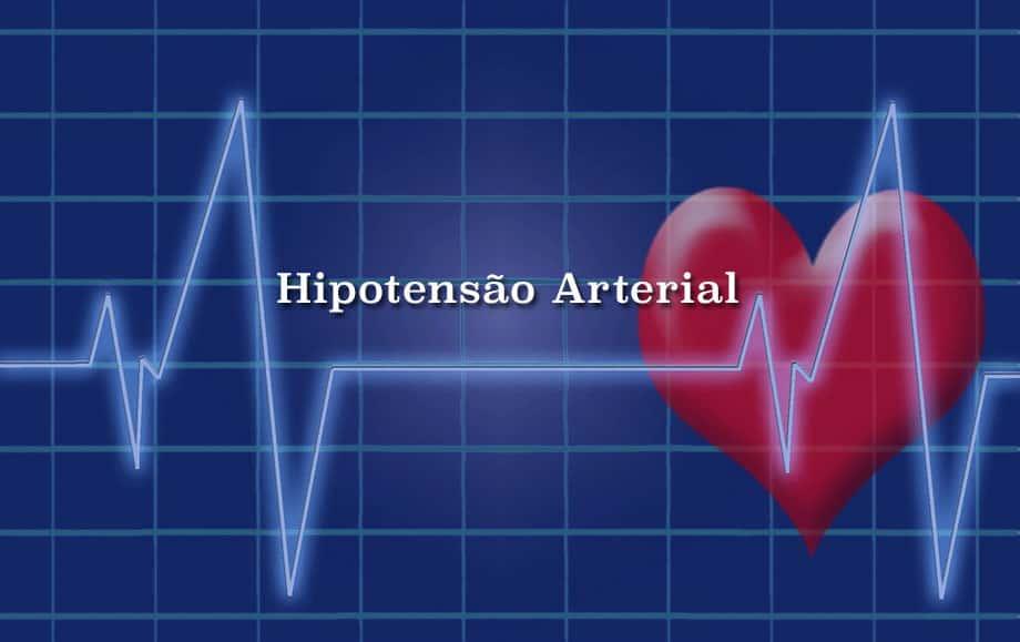 Hipotensão Arterial