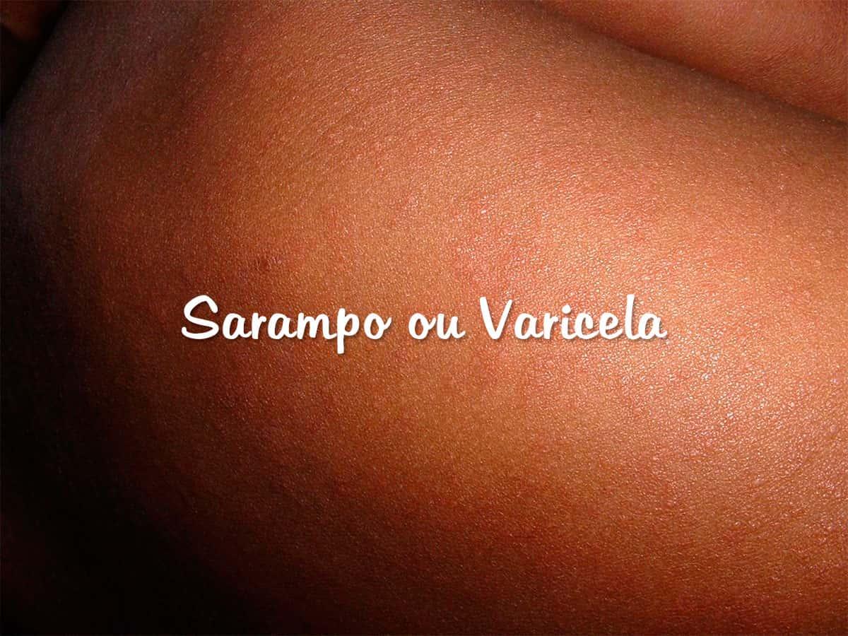 Sarampo ou Varicela