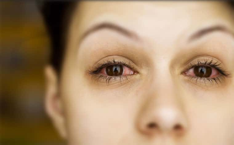 Veja as 4 principais causas que deixam os olhos vermelhos e descubra como tratar