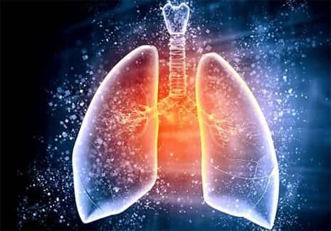 Doenças transmitidas pelo ar, pulmões infectados