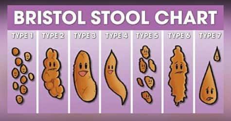 Escala Bristol Stool Chart