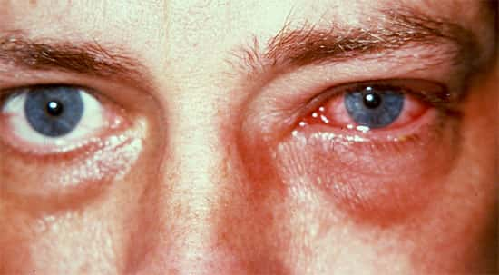Reações alérgicas